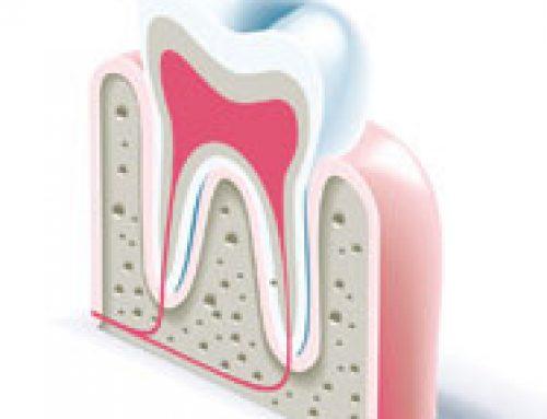 Zubobolja ili zašto bole zubi