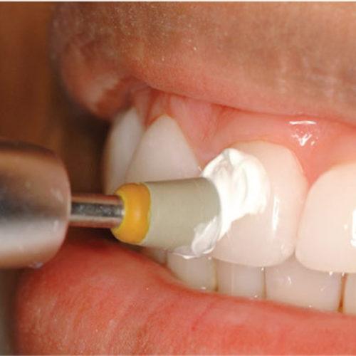 Stomatološka ordinacija Dr Nataša Ranđelović poliranje zuba