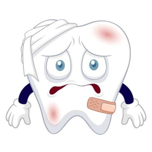 Stomatološka ordinacija Dr Nataša Ranđelović zbrinjavanje povreda po zubu