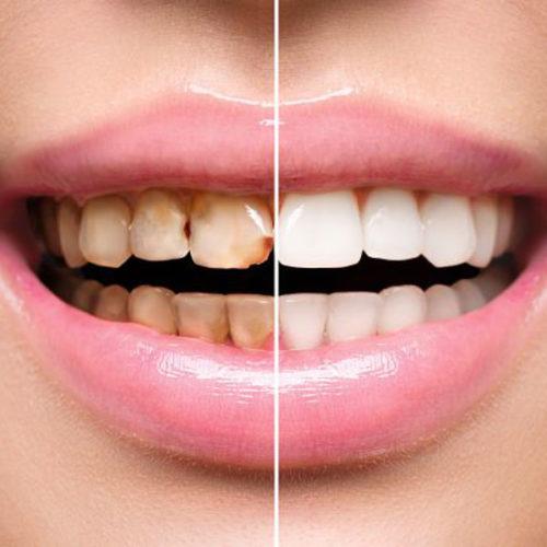 STOMATOLOŠKA ORDINACIJA DR NATAŠA RANĐELOVIĆ, SPECIJALISTA ORTOPEDIJE VILICA, beljenje lečenih zuba