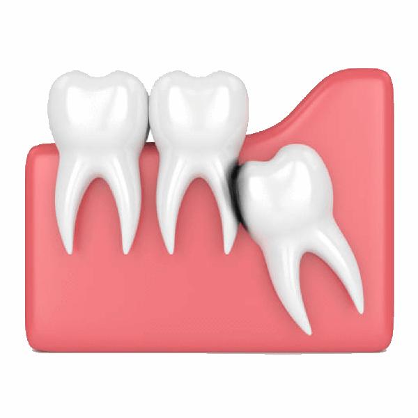 STOMATOLOŠKA ORDINACIJA DR NATAŠA RANĐELOVIĆ, SPECIJALISTA ORTOPEDIJE VILICA, hiruško oslobađanje zuba