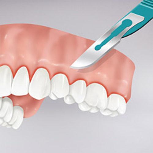 STOMATOLOŠKA ORDINACIJA DR NATAŠA RANĐELOVIĆ, SPECIJALISTA ORTOPEDIJE VILICA, Paradontalna operacija po zubu