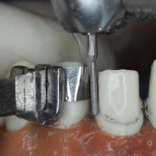 STOMATOLOŠKA ORDINACIJA DR NATAŠA RANĐELOVIĆ, SPECIJALISTA ORTOPEDIJE VILICA, selektivno brušenje po zubu