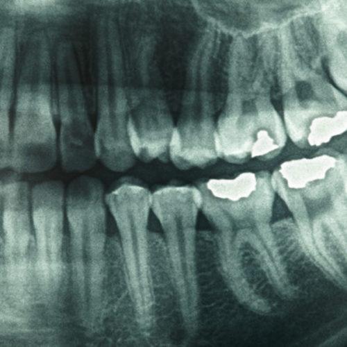 STOMATOLOŠKA ORDINACIJA DR NATAŠA RANĐELOVIĆ, SPECIJALISTA ORTOPEDIJE VILICA, Snimanja zuba