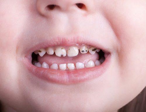 Kako sačuvati oralno zdravlje dece – III deo dete ima karijes